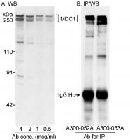 Detection of human MDC1 by western blot