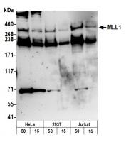 Detection of human MLL1 by western blot.