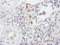Detection of human MSH6 by immunohistoch