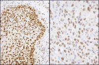Detection of human and mouse Matrin 3 by