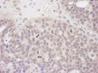 Detection of human Mre11 by immunohistoc