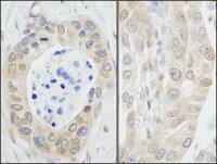 Detection of human NMI by immunohistoche