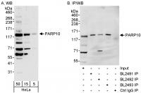 Detection of human PARP10 by western blo