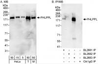 Detection of human and mouse PHLPPL by w