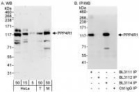 Detection of human and mouse PPP4R1 by W