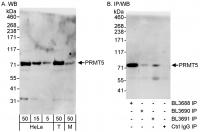 Detection of human and mouse PRMT5 by WB