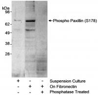Detection of mouse phospho Paxillin (Ser