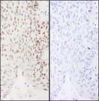 Detection of human Phospho XRCC1 (S461)