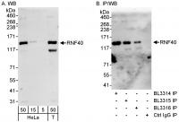 Detection of human RNF40 by western blot