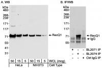 Detection of human and mouse RecQ1 by we