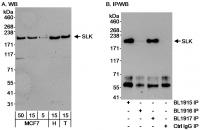 Detection of human SLK by western blot a