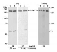 Detection of human SMC4 by western blot