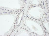 Detection of human SRC1 by immunohistoch