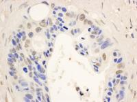 Detection of human STAT6 by immunohistoc