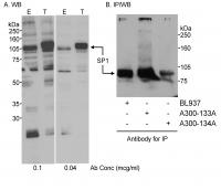 Detection of human SP1 by western blot a