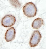 Detection of human TPR by immunohistoche