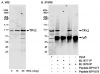Detection of human TPX2 by western blot