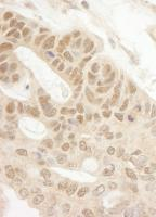 Detection of human Tip41 by immunohistoc