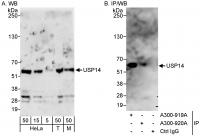 Detection of human and mouse USP14 by we