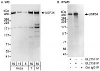 Detection of human and mouse USP34 by WB