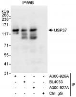 Detection of human USP37 by western blot