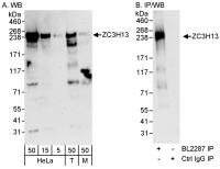 Detection of human and mouse ZC3H13 by W