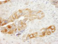 Detection of human eEF1G by immunohistoc