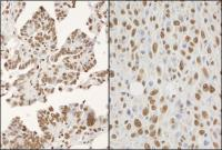 Detection of human and mouse hnRNP-K by