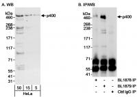 Detection of human p400 by western blot