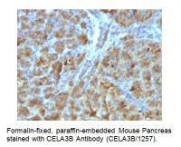 Anti-CELA3B / ELA3B Antibody (CELA3B/125