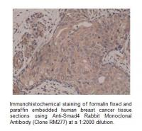 Anti-Smad4 Rabbit Monoclonal Antibody