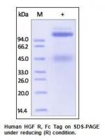 Human CellExp™ HGFR / c-MET, Fc Tag, Hum