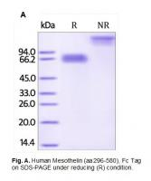Human CellExp™ Mesothelin / MSLN, Fc Tag