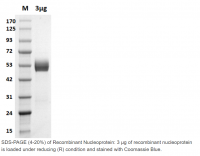 Human CellExp™ SARS-CoV-2 Nucleoprotein,