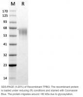 Human CellExp™ TPBG, Human Recombinant