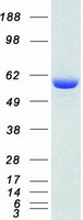 Coomassie blue staining of purified USP1