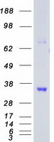 Coomassie blue staining of purified CDK5