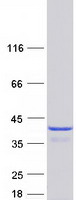 Coomassie blue staining of purified TXNL
