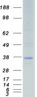 Coomassie blue staining of purified STK1