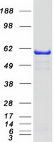 Coomassie blue staining of purified NMT1