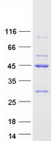 Coomassie blue staining of purified EIF2