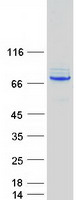 Coomassie blue staining of purified CTPS