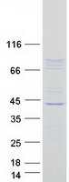 Coomassie blue staining of purified CSRP
