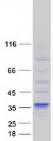 Coomassie blue staining of purified DHRS