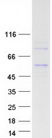 Coomassie blue staining of purified ADPG