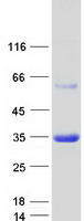 Coomassie blue staining of purified APIP
