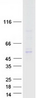 Coomassie blue staining of purified TFDP