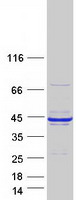 Coomassie blue staining of purified RCN1
