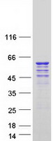 Coomassie blue staining of purified CDK1