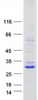 Coomassie blue staining of purified TMEM